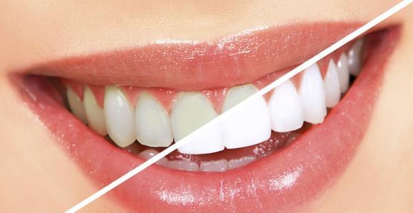 Dentalna estetika, Sara Rolič s.p.